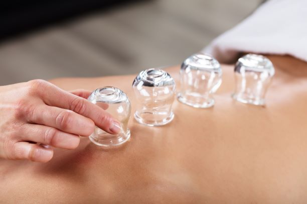 Therapeutic Cupping for Health Professionals